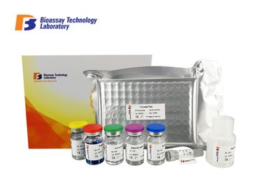 Professional Ps Human Elisa Kit Customized Accurate Quantitative Detection